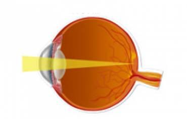Defectos refractarios